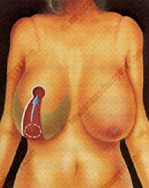 cost breast reduction tunisia